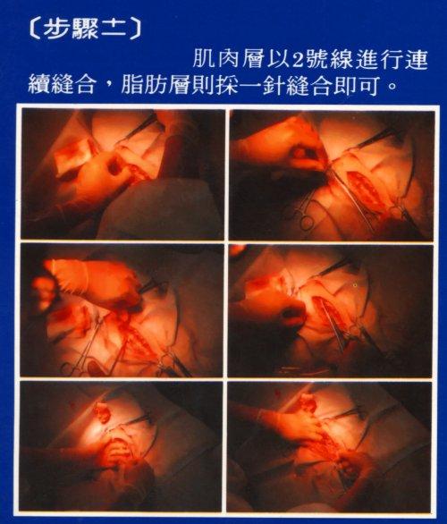 胚移置技術-豬胚移置步驟11
