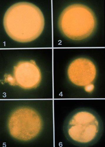 兔卵解凍後之粒線體分佈等級(生殖細胞的冷凍p74)