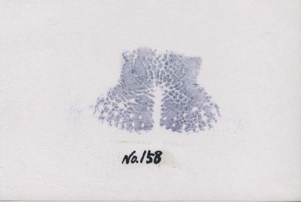 主任鼻158h