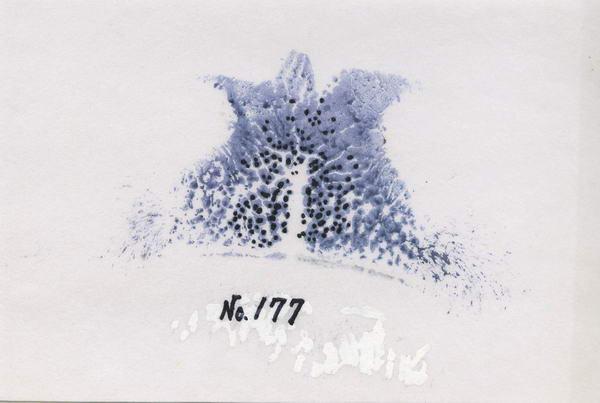 主任鼻177h
